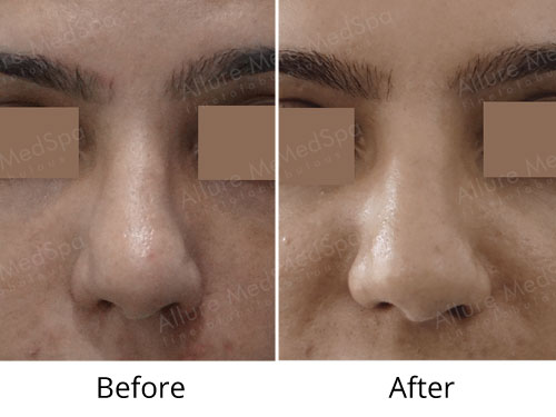 Brow Lift Before and After Gallery at Affordable Cost in Mumbai, India