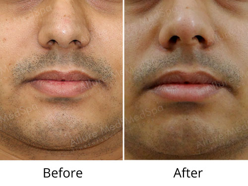 Cheek Reduction Surgery Before and After Photos by Celebrity Cosmetic Surgeon Dr. Milan Doshi in Mumbai, India