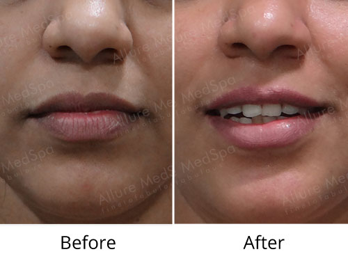 Cheek Reduction Before and After Gallery at Affordable Cost in Mumbai, India