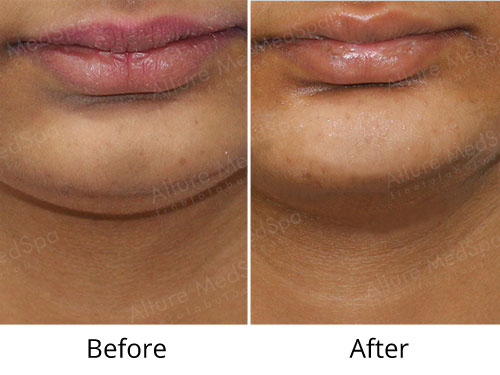 Chin Augmentation Before and After Gallery at Affordable Cost in Mumbai, India