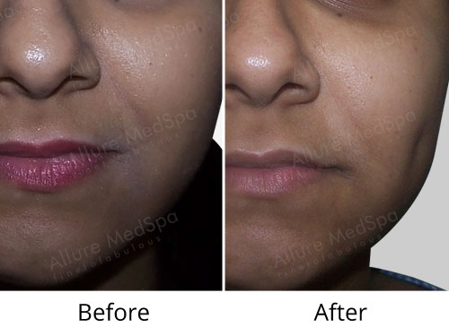 Dimple Creation Before and After Images at Transparent Cost in Mumbai, India