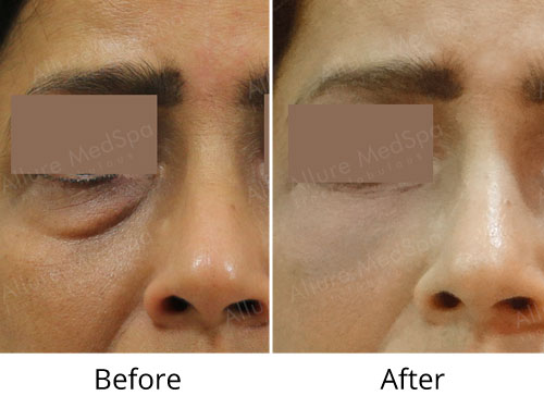 Blepharoplasty Surgery Before and After Gallery by Celebrity Cosmetic Surgeon Dr. Milan Doshi in Mumbai, India