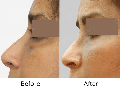 Eyelid Surgery Before and After Images at Transparent Cost in Mumbai, India