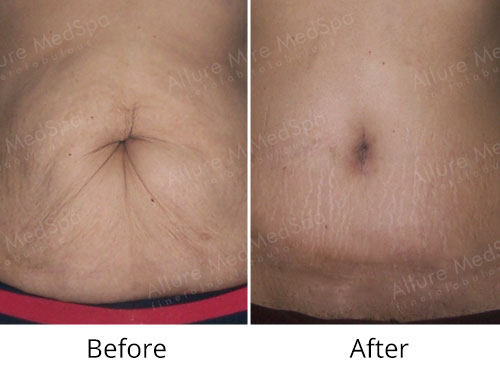 Mommy Makeover Surgery Before and After Pictures by Celebrity Cosmetic Surgeon Dr. Milan Doshi in Mumbai, India