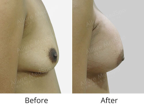Mommy Makeover Surgery Before and After Gallery at Affordable Cost in Mumbai, India