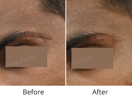Scar Revision Surgery Before and After Photos by Celebrity Cosmetic Surgeon Dr. Milan Doshi in Mumbai, India