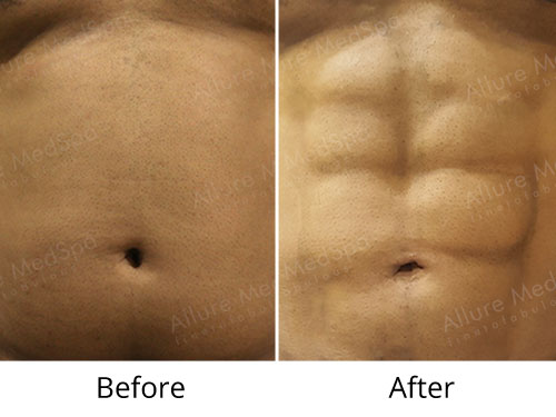 Six Pack Abs Liposuction Before and After Pictures by Celebrity Cosmetic Surgeon Dr. Milan Doshi in Mumbai, India