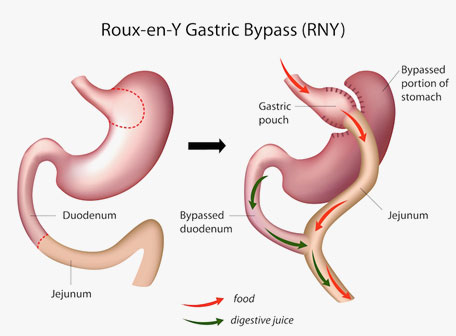 Laparoscopic Roux en Y Gastric Bypass Surgery in Mumbai, India