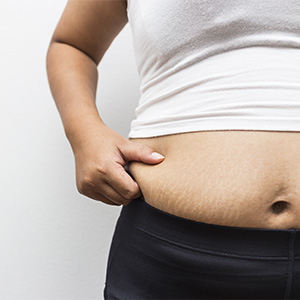 Gastric Sleeve Surgery in Mumbai, India