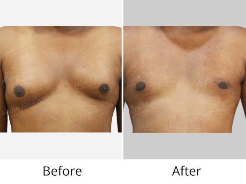 Asymmetric Gynecomastia before after photos