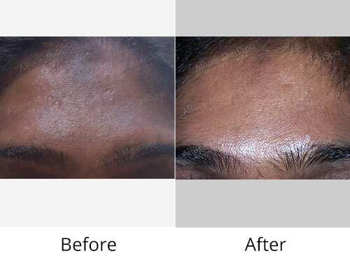 General Skin Health Before and After Photos by Celebrity Cosmetic Surgeon Dr. Milan Doshi in Mumbai, India