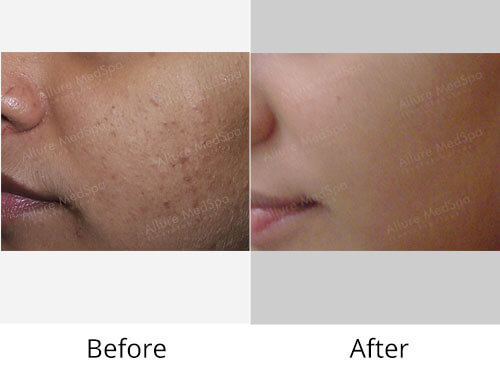 General Skin Health Before and After Gallery at Affordable Cost in Mumbai, India