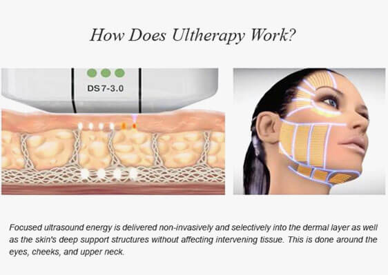 HIFU for Face Lifting & Rejuvenation in Mumbai, India