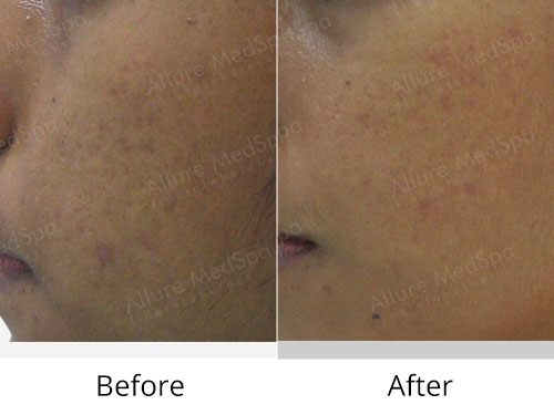 Microdermabrasion Before and After Gallery by Celebrity Cosmetic Surgeon Dr. Milan Doshi in Mumbai, India