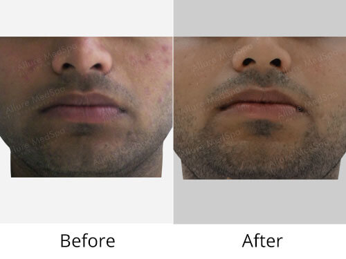 Microdermabrasion Before and After Photos at Affordable Cost in Mumbai, India
