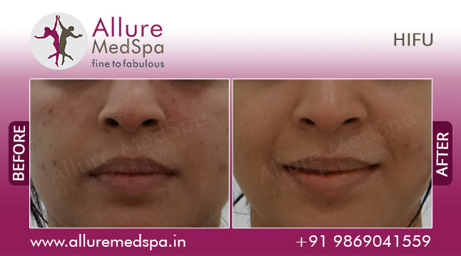HIFU for Face Lifting & Rejuvenation Before and After Images at Affordable Price in Mumbai, India