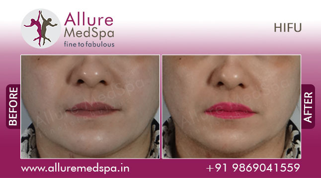 HIFU Treatment Before and After Pictures at Reasonable Cost in Mumbai, India