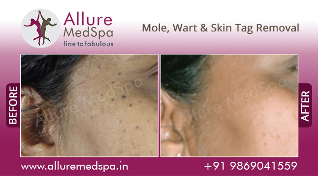 Mole, Wart & Skin Tag Removal Treatment Before and After Images at Affordable Price in Mumbai, India
