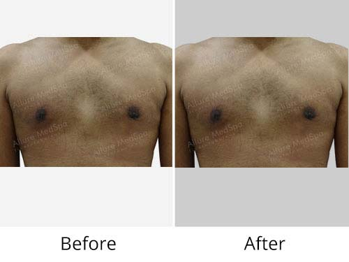 Severe Gynecomatia Before and After Picture at Allure MedSpa