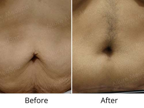Tummy Tuck Male Before and After results at Allure MedSpa