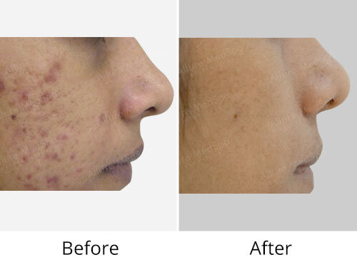 Acne Treatments Before After Image