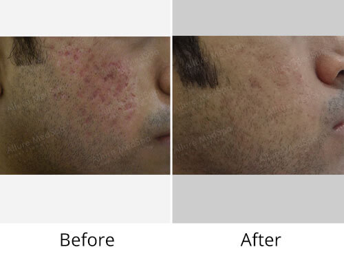 Acne Treatments Before After Photo
