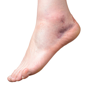 Ankles Liposuction in Mumbai, India