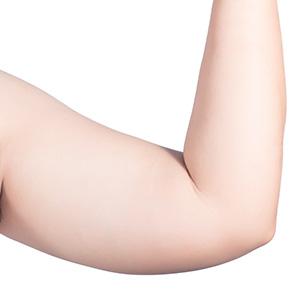 Arm Liposuction in Mumbai, India