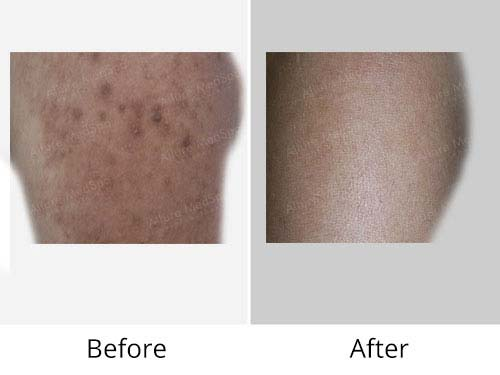 Birthmark Removal Treatment Before and After Images at Affordable Cost in Mumbai, India