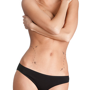 Body Contouring Liposuction in Mumbai, India