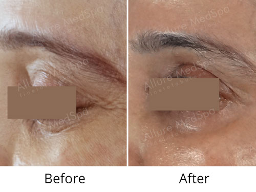 Botox Before and After Images at Alluremedspa in Mumbai India