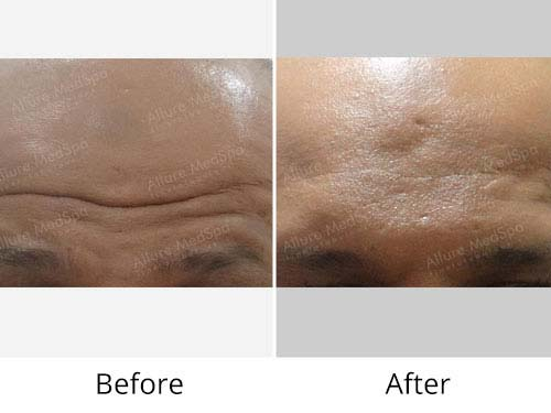 Botox Treatment Before and After Results at Alluremedspa in Mumbai India