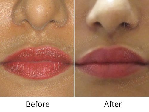 Dermal Fillers Before and After Pictures by Celebrity Cosmetic Surgeon Dr. Milan Doshi in Mumbai, India