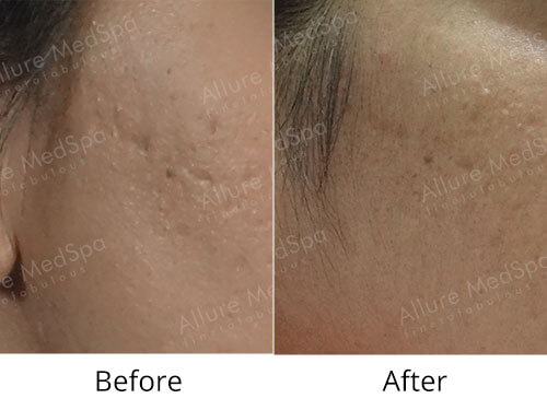 Dermaroller Treatment Before and After Gallery at Affordable Cost in Mumbai, India