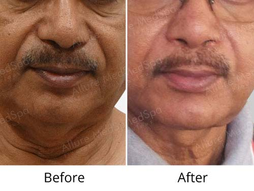 Face Lift Before and After results at Allure MedSpa