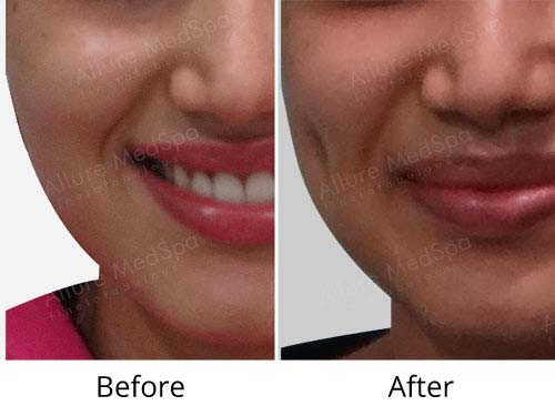 dimple creation before and after Mumbai India