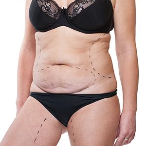 Endoscpic Tummy Tuck Surgery Mumabi