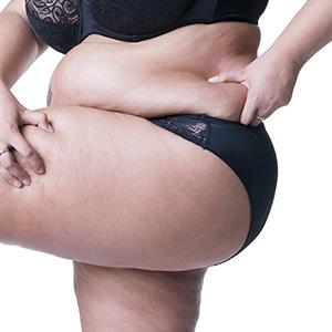 Flanks Liposuction in Mumbai, India
