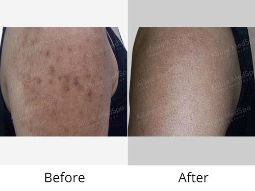 Fractional Laser Treatment Before and After Pictures at Transparent Price in Mumbai, India