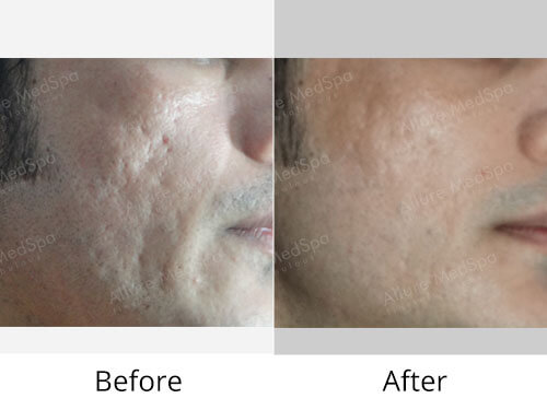 Fractional Laser Treatment Before and After Gallery at Affordable Cost in Mumbai, India