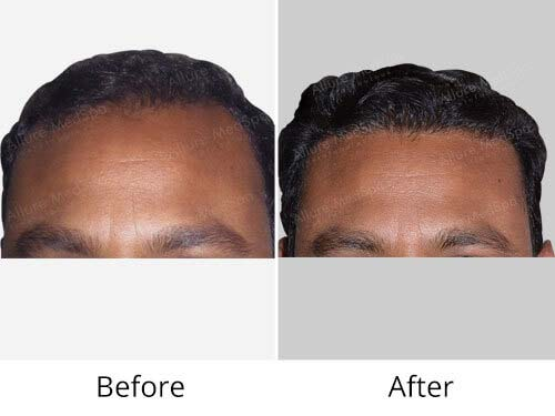 Hair Transplant Before and After Images at Allure MedSpa