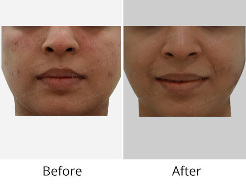 HIFU Before After Photo at Alluremedspa Mumbai India
