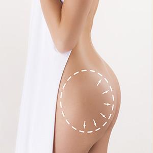 Hip Liposuction in Mumbai, India