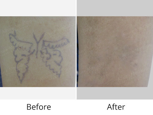 Laser Tattoo Removal Before And After Images India
