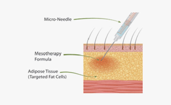 Mesotherapy Skin