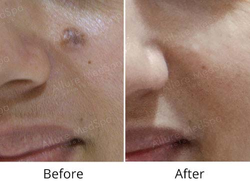 Mole Removal Before And After Mumbai