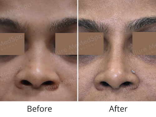 Female Rhinoplasty Before and After Photos at Reasonable Cost in Mumbai, India