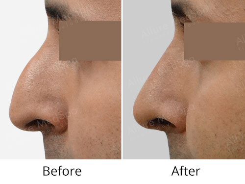 Male Rhinoplasty Before and After Gallery at Affordable Cost in Mumbai, India