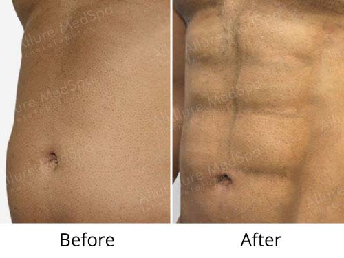 Six pack abs Liposuction Before and After Photo at Allure MedSpa