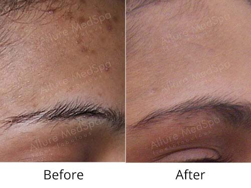 Skin Peels Before and After Images at Alluremedspa Mumbai India